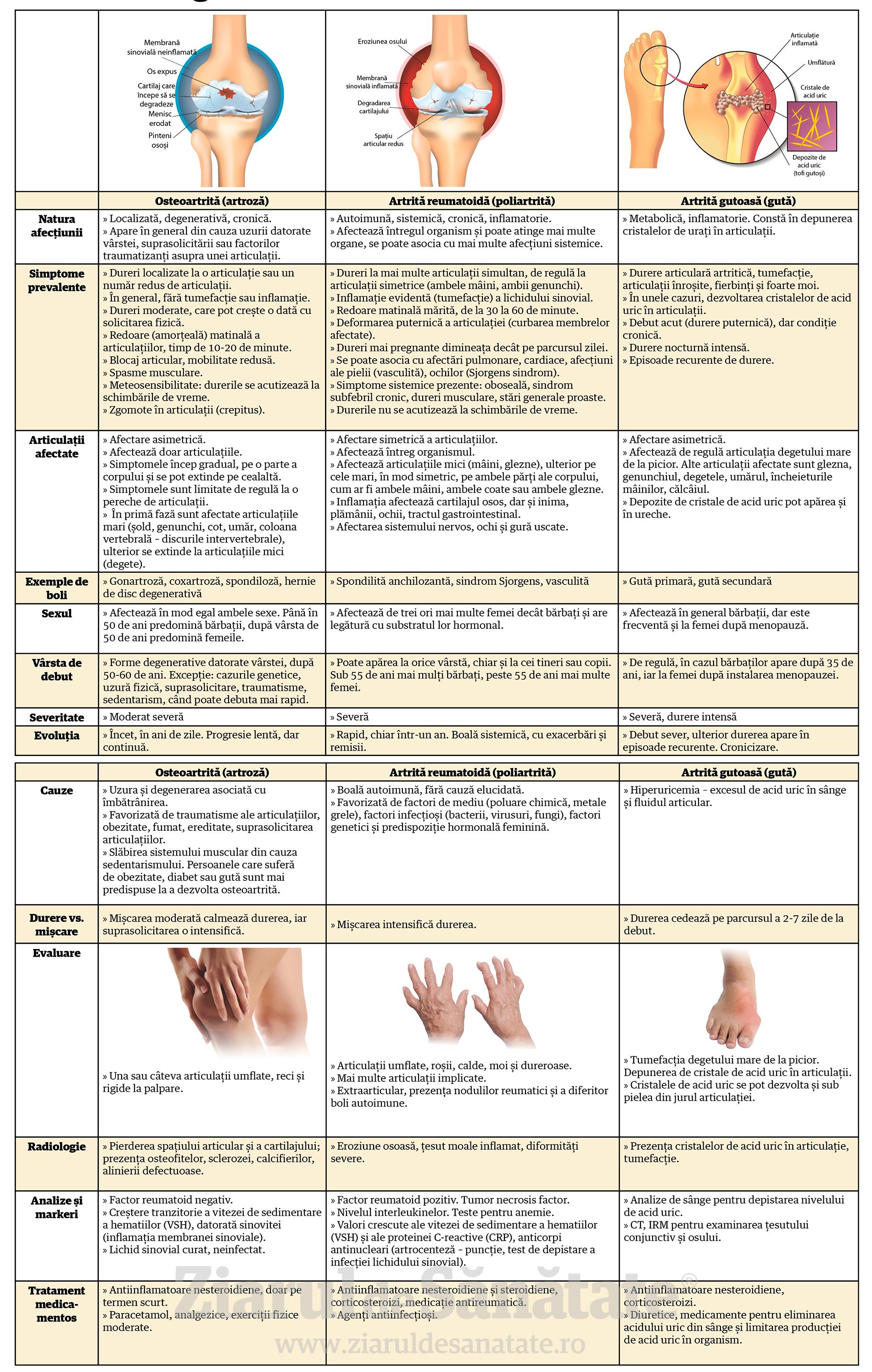 tabel-artrite